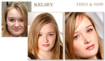Kelsey - Before and After